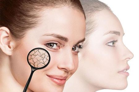 女性脸部肌肤长红血丝,必须注意的生活细节事项